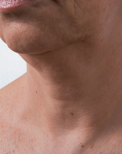 Viscoderm Neck - After